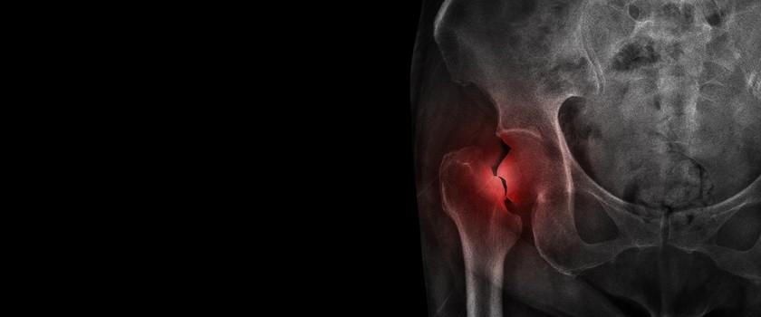 Złamania osteoporotyczne – czym się charakteryzują i kto jest na nie najbardziej narażony?