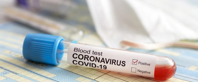 Koronawirus SARS-CoV-2 i choroba COVID-19 – fakty i mity