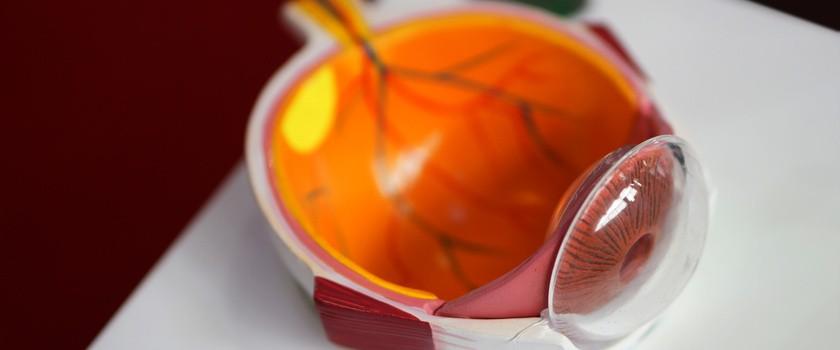 Retinopatia cukrzycowa – przyczyny, objawy, leczenie cukrzycowej choroby oczu