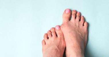 Haluksy – przyczyny, objawy, leczenie palucha koślawego. Ćwiczenia na haluksy