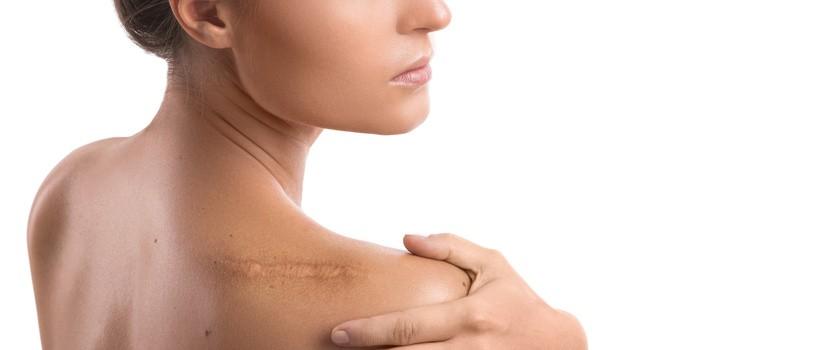 Blizna po operacji – mobilizacja oraz masaż blizny. Na czym polega terapia blizn?